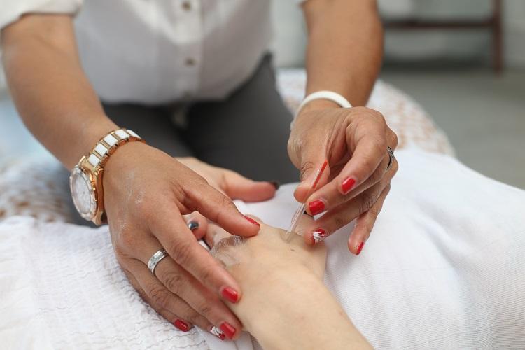 Akupunktur bei Rückenschmerzen