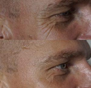 Botox Behandlung vorher nachher