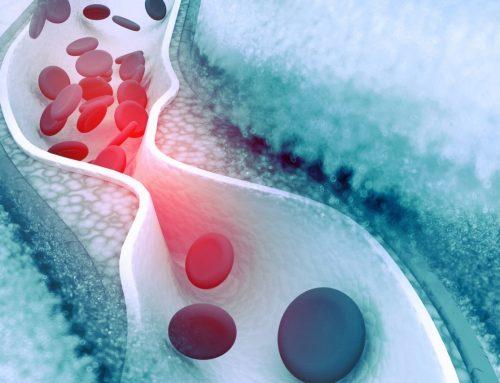 Cholesterin, Arteriosklerose und Fettstoffwechselstörungen