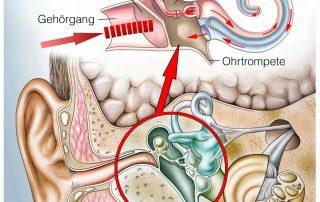 Morbus Menière Behandlung Symptome